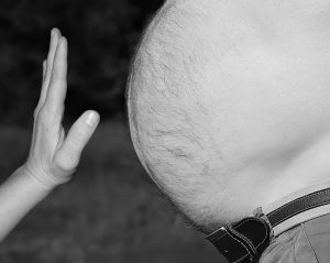 obesity is a major health risk