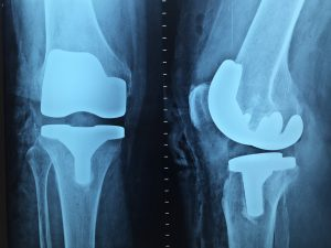 Osteoporosis and Men Approaching 50